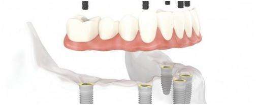 Hàm răng giả tháo lắp trên các Implant
