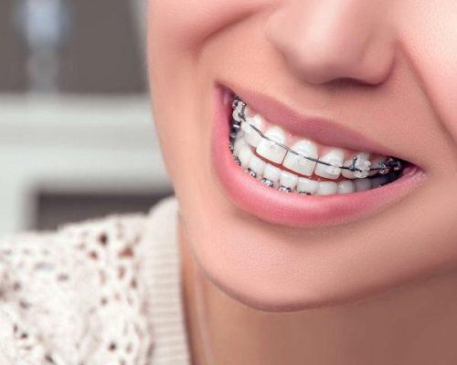 Kết quả hình ảnh cho Niềng răng chính là phương pháp sử dụng những khí cụ nắn chỉnh