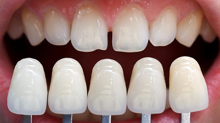 Kết quả hình ảnh cho Chính vì vậy cho nên bệnh nhân sau khi răng sứ